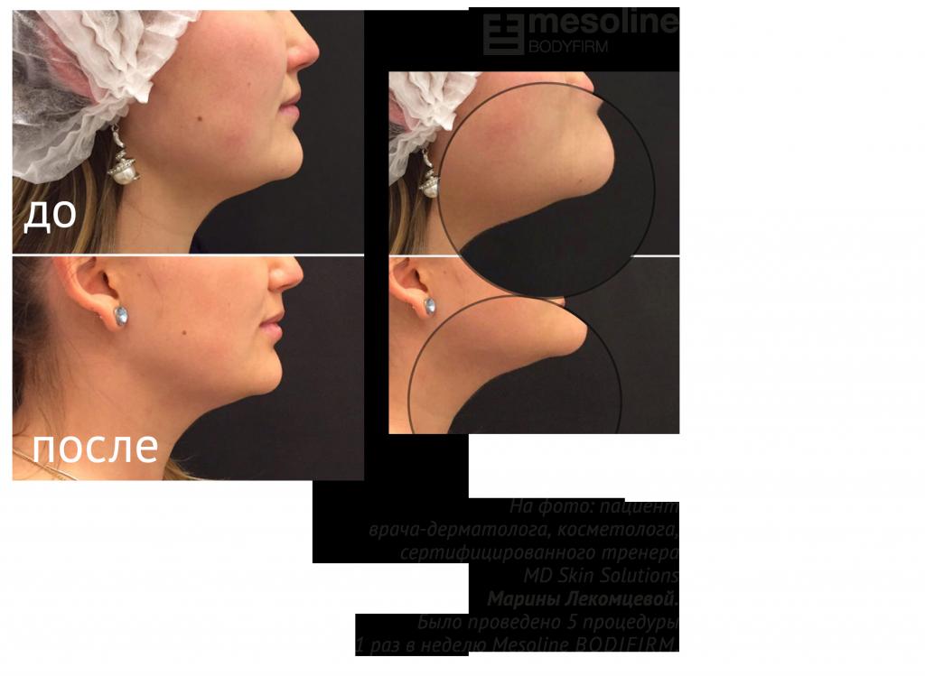 Mesoline BODYFIRM. Расширенные протоколы использования